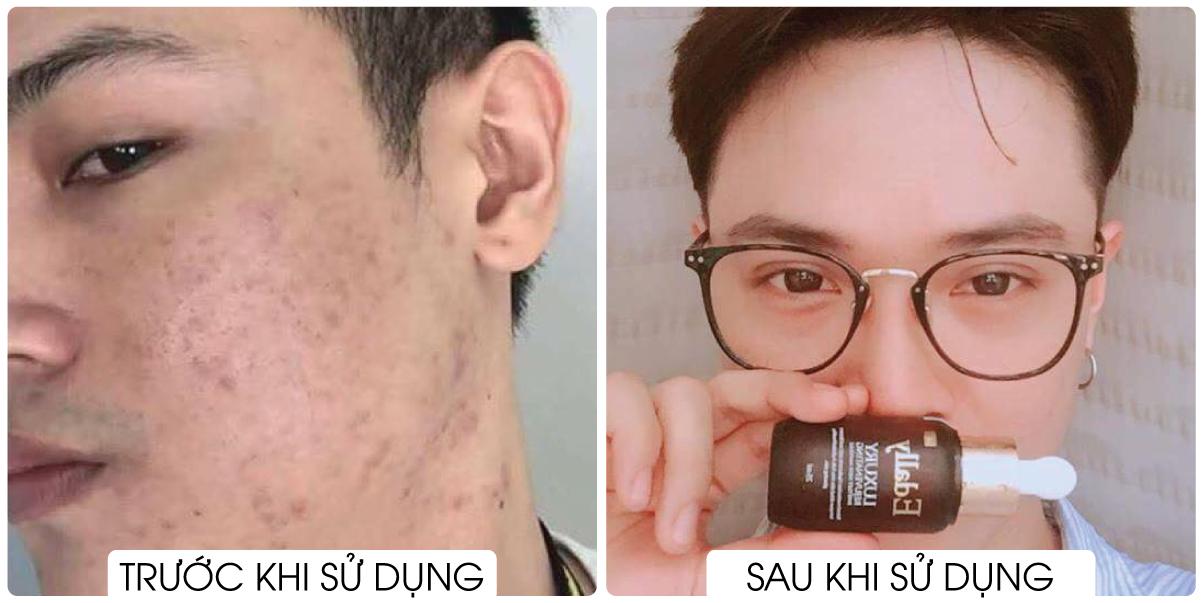 Lộ bí quyết dưỡng da hiệu quả tại nhà của hàng loạt mỹ nhân Việt - Ảnh 8