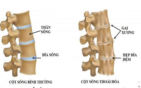 Cách phòng bệnh thoái hóa cột sống thắt lưng - Ảnh 2