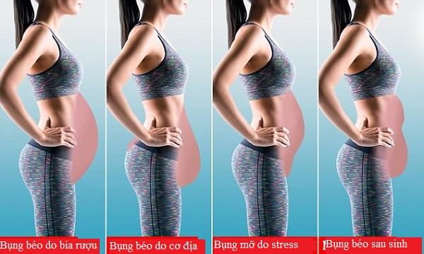 Nguyên nhân của 4 dáng bụng chảy xệ phổ biến nhất và cách khắc phục nhanh chóng - Ảnh 1