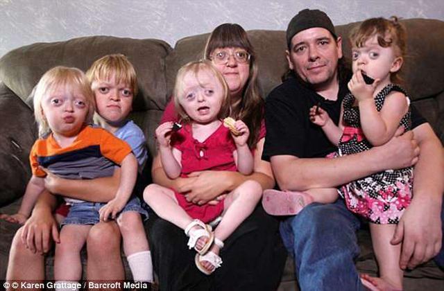 Người mẹ có 4 đứa con gương mặt dị thường đau xót vì những lời chế diễu - Ảnh 1