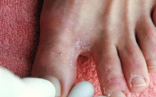 6 bài thuốc dân gian chữa nước ăn chân tại nhà cho người dân vùng lũ - Ảnh 1