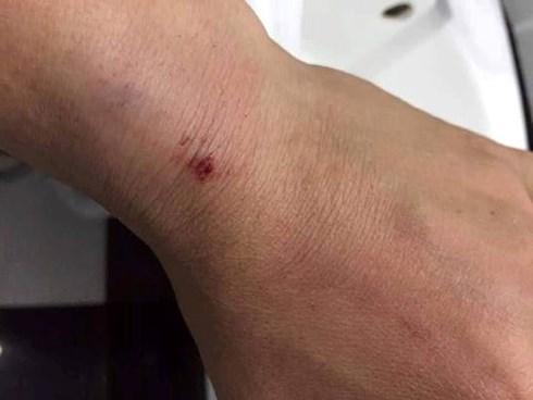 Đắk Lắk: Chủ tịch phường bị hai kẻ lạ mặt tấn công - Ảnh 1