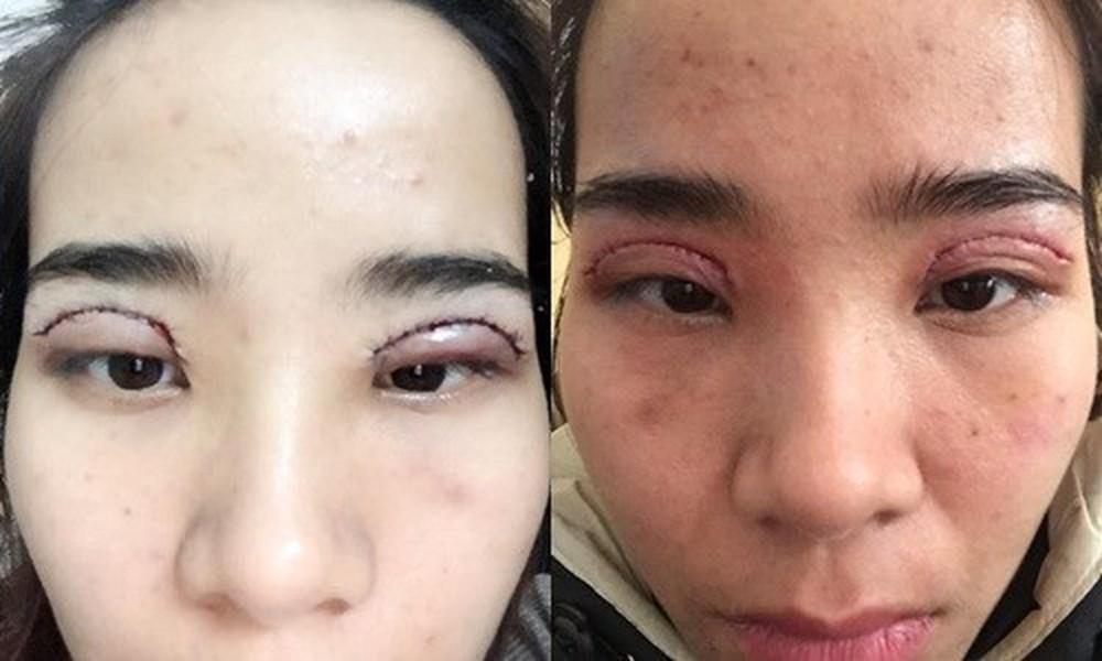 Những biến chứng có thể xảy ra sau cắt mí và cách khắc phục  - Ảnh 2