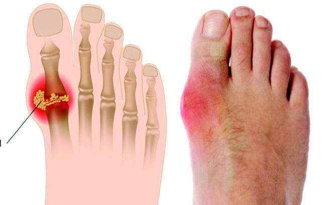 Acid uric cao bao nhiêu thì bị bệnh gout? - Ảnh 2