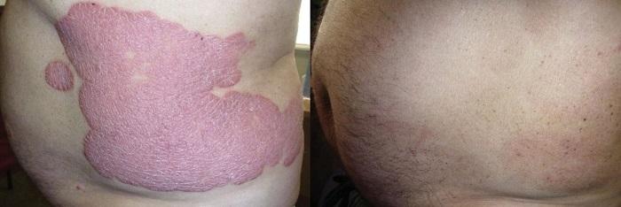 Điều trị bệnh vẩy nến hiệu quả bằng thảo dược - Ảnh 2