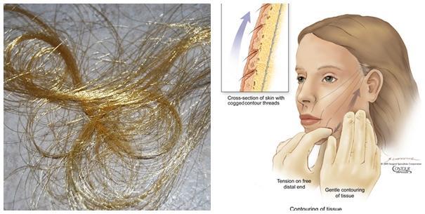 Đột phá công nghệ căng da mặt bằng chỉ vàng 24k - Ảnh 1