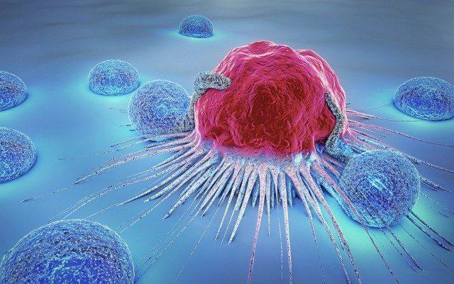 Trong quá trình truyền hóa chất, bệnh nhân ung thư cần chú ý những gì - Ảnh 1