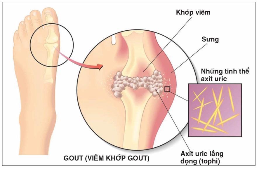 Bệnh gout cần kiêng ăn những gì? Người bệnh cần biết để chữa bệnh hiệu quả - Ảnh 1