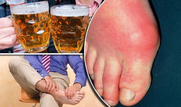 Bệnh gout cần kiêng ăn những gì? Người bệnh cần biết để chữa bệnh hiệu quả - Ảnh 2