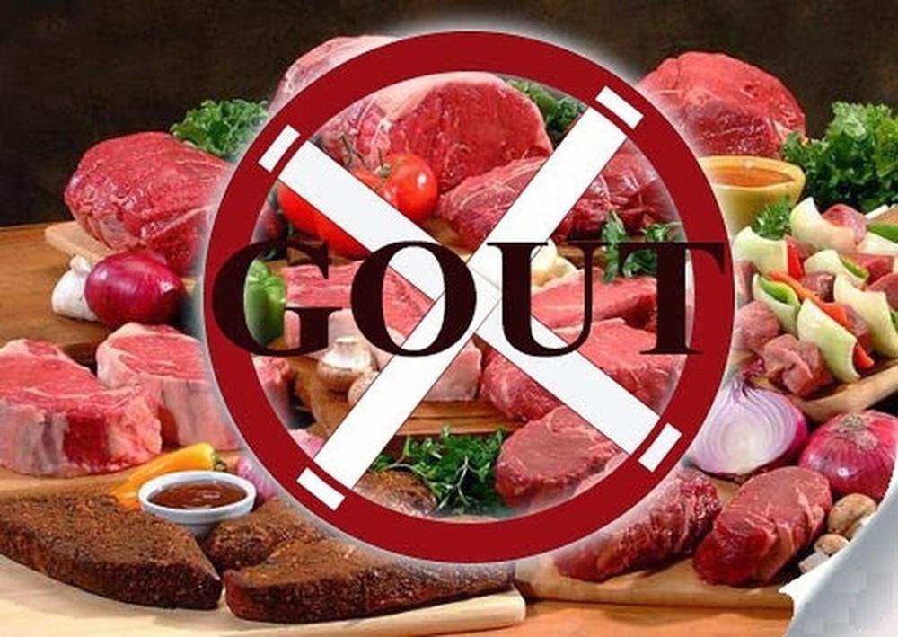 Bệnh gout cần kiêng ăn những gì? Người bệnh cần biết để chữa bệnh hiệu quả - Ảnh 3