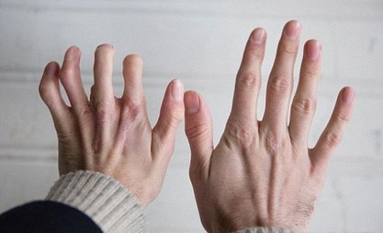 Cách chữa viêm khớp dạng thấp an toàn bằng thảo dược ngay tại nhà - Ảnh 2