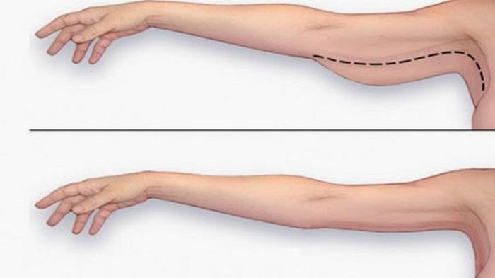 Hút mỡ cánh tay – Tự tin diện áo hai dây - Ảnh 3