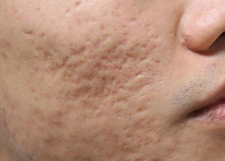Cơ chế hình thành sẹo lõm sau mụn và cách điều trị hiệu quả  - Ảnh 1
