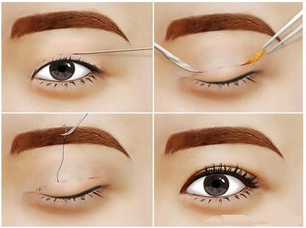 Bấm mí mắt Hàn Quốc – Mắt long lanh hút ánh nhìn - Ảnh 2