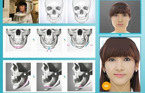 Gọt mặt Vline, công nghệ mang đến gương mặt thon gọn chuẩn sao Hàn  - Ảnh 2
