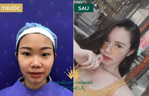 Cắt mí mắt - Công nghệ hiện đại cho đôi mắt quyến rũ chuẩn Hàn - Ảnh 3