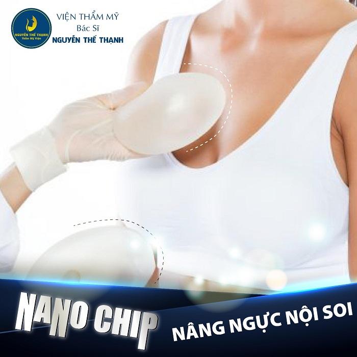 Nâng ngực nội soi Nano chip – Giải pháp cho vòng một căng tròn - Ảnh 1