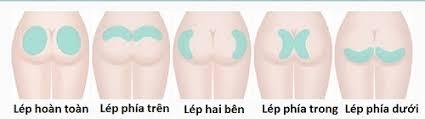 Nâng mông nội soi – Bí quyết sở hữu vòng 3 cuốn hút - Ảnh 2