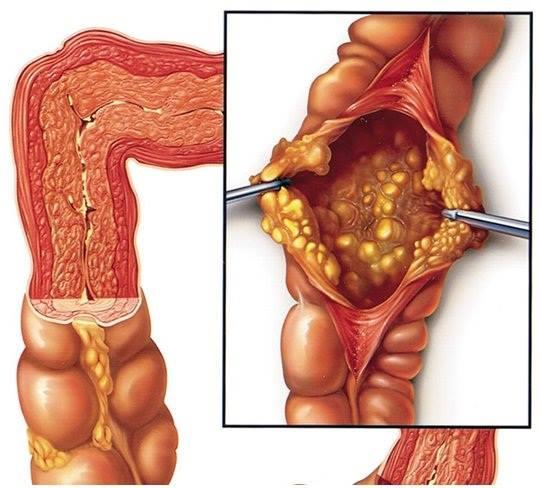 Biểu hiện của viêm đại tràng báo động xử lý ngay tránh biến chứng  - Ảnh 1