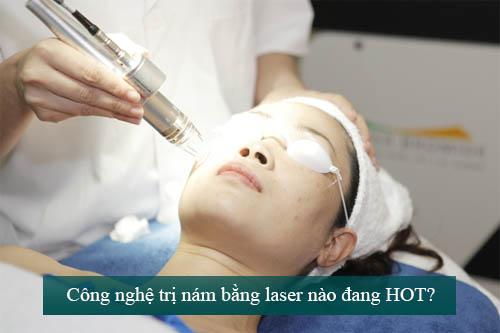 3 lưu ý thuộc lòng nếu muốn da nhanh đẹp sau khi điều trị nám bằng laser  - Ảnh 1
