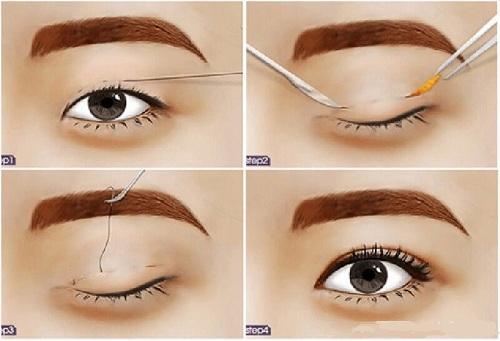 Nhấn mí - Giải pháp cho đôi mắt quyến rũ thu hút mọi ánh nhìn  - Ảnh 1