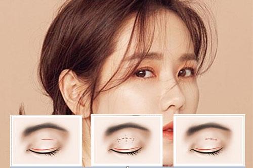 Nhấn mí - Giải pháp cho đôi mắt quyến rũ thu hút mọi ánh nhìn  - Ảnh 2