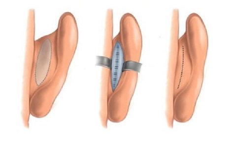 Nâng mũi sụn tai, liệu có phải là phương pháp an toàn nhất? - Ảnh 1