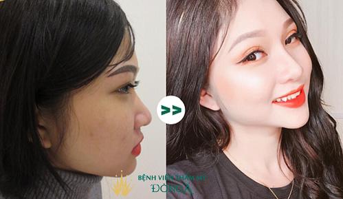 Nâng mũi bằng sụn sườn, liệu đã là phương pháp chỉnh sửa tốt nhất?  - Ảnh 2