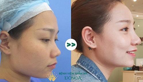 Nâng mũi bằng sụn sườn, liệu đã là phương pháp chỉnh sửa tốt nhất?  - Ảnh 3
