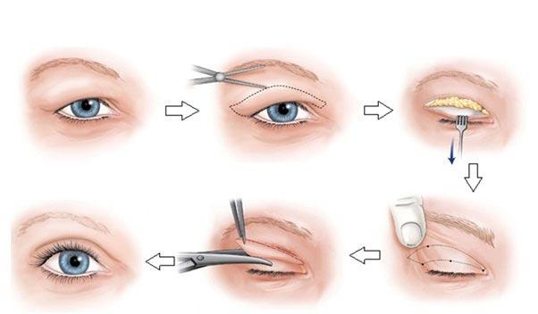 Lấy mỡ mí mắt trên và những điều cần lưu ý - Ảnh 2