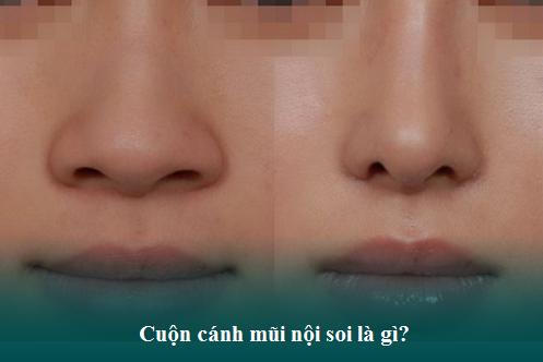 Thu gọn cánh mũi nội soi - Tiểu phẫu nhưng có thật sự an toàn?  - Ảnh 2