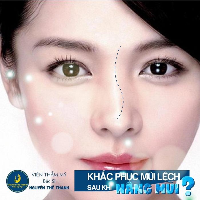 Sửa mũi hỏng sau nâng – Khắc phục mọi biến chứng - Ảnh 1