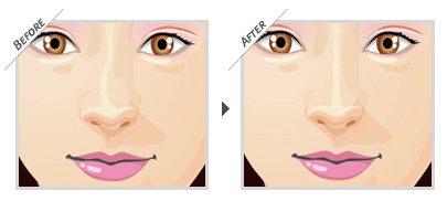 Sửa mũi hỏng sau nâng – Khắc phục mọi biến chứng - Ảnh 2