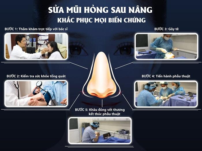 Sửa mũi hỏng sau nâng – Khắc phục mọi biến chứng - Ảnh 3