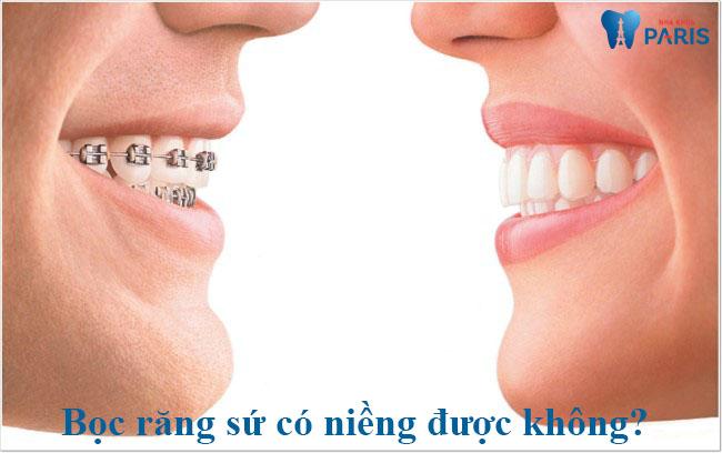 Giải đáp nha khoa: Răng đã bọc sứ có niềng được không? - Ảnh 1
