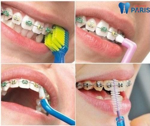 Giải đáp nha khoa: Răng đã bọc sứ có niềng được không? - Ảnh 5