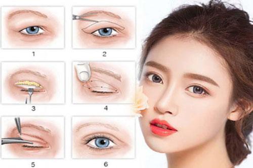 Nguyên nhân và cách khắc phục tình trạng mắt bị sụp mí  - Ảnh 3