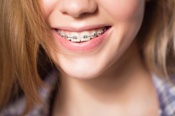 10 câu hỏi được nhiều người quan tâm nhất khi niềng răng - Ảnh 3