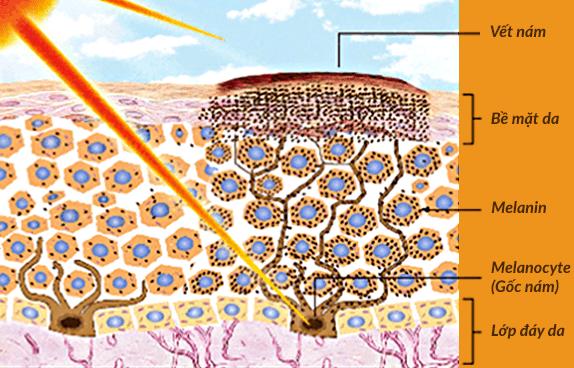 Nguyên nhân gây nám da và các giải pháp trị nám - Ảnh 2