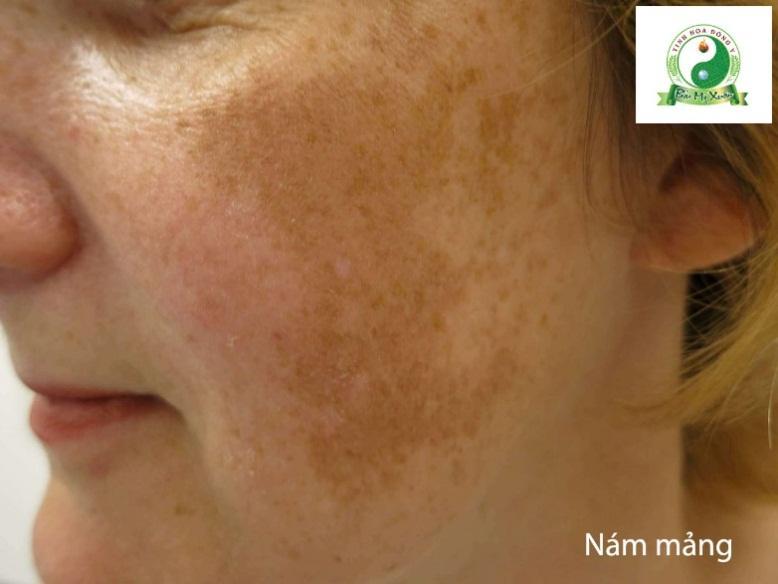 Nguyên nhân gây nám da và các giải pháp trị nám - Ảnh 3