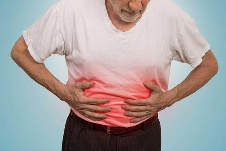 Biến chứng nguy hiểm của viêm đại tràng mãn tính - Ảnh 1