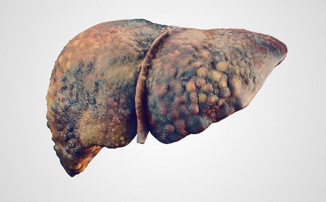 Tìm hiểu về ung thư gan và cách phòng tránh ung thư gan cho người Việt - Ảnh 3
