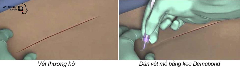 Phẫu thuật không khâu da – Giải pháp trọn vẹn cho lĩnh vực phẫu thuật thẩm mỹ - Ảnh 3