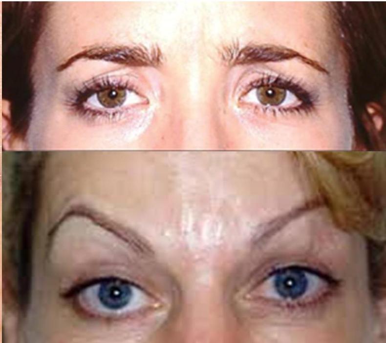 Biến chứng nguy hiểm khi tiêm botox làm đầy khuôn mặt - Ảnh 2