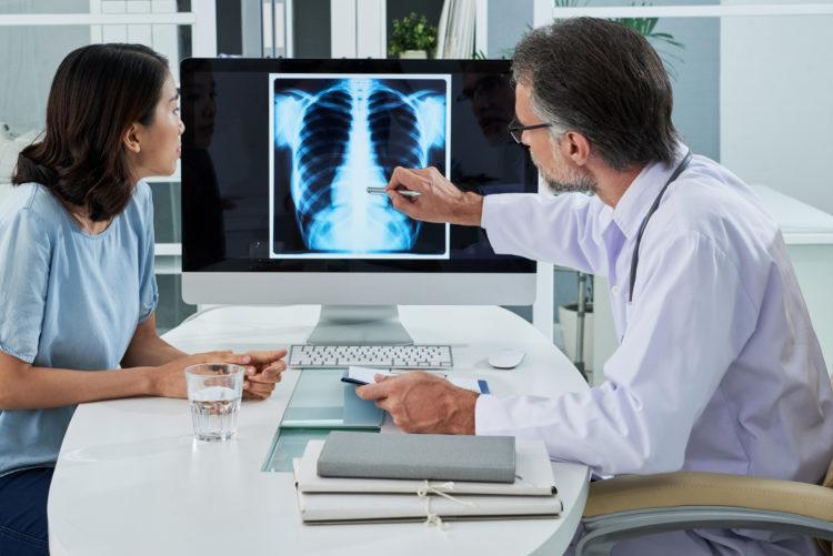 Ung thư phổi giai đoạn 2: Nguyên nhân, đặc điểm, triệu chứng của bệnh - Ảnh 1