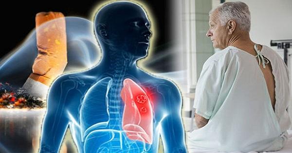 Ung thư phổi giai đoạn 2: Nguyên nhân, đặc điểm, triệu chứng của bệnh - Ảnh 2