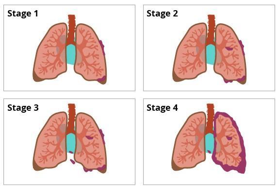 Ung thư phổi giai đoạn 3 và giai đoạn 4 khác nhau như thế nào? - Ảnh 1