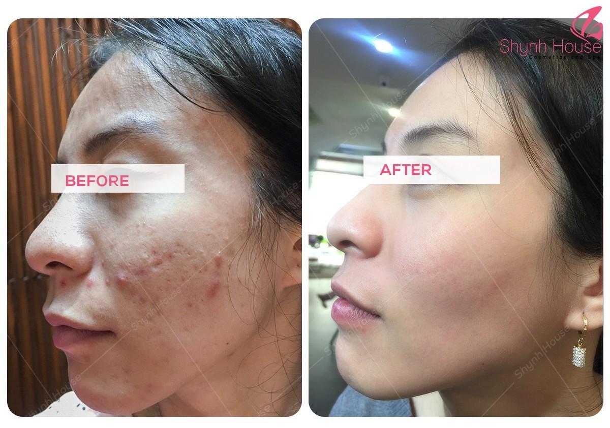 Tích hợp nhiều bước chăm sóc da trong một liệu trình New Perfect Skin  - Ảnh 2