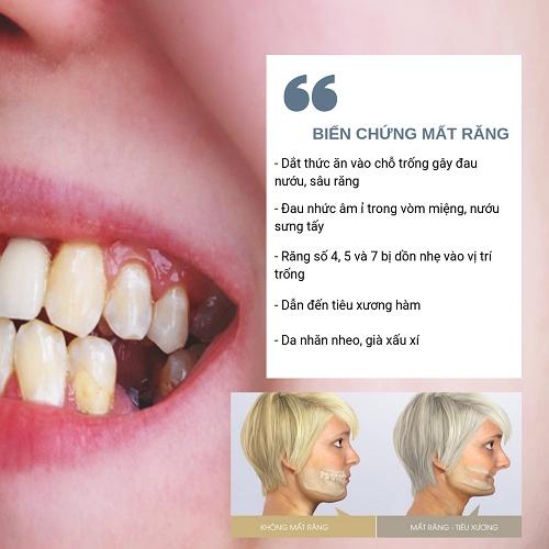 Nỗi ám ảnh kinh hoàng đối với người mất răng - Ảnh 2