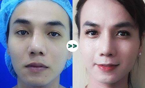 90% chị em lựa chọn nâng mũi cấu trúc khi phẫu thuật thẩm mỹ, tại sao?  - Ảnh 4